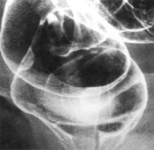 Фото: опухоль прямой кишки