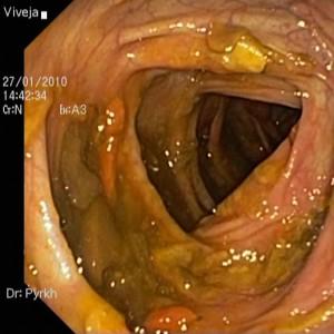 фото: снимок колоноскопии