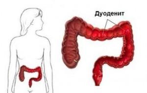 фото: храническая форма заболевания