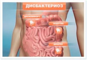 фото: дисбактериоз кишечника симптомы