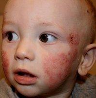 Фото: аллергия при дисбактериозе